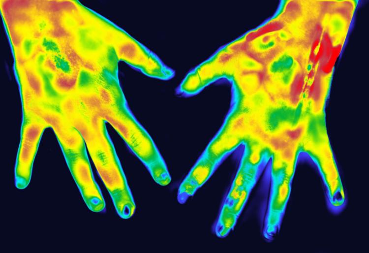 sindrome de Sudeck manos